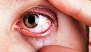 Cerca de 16.000 murcianos reciben tratamiento crónico por glaucoma